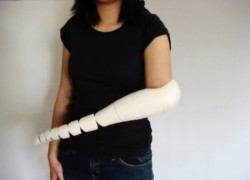 Tentacle Prosthetic Wraps and Curls Where Hands Used to Twist and Grab
